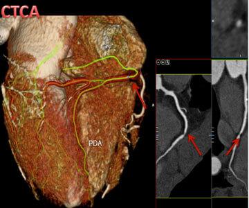 United Cardiology CT Coronary Angiogram